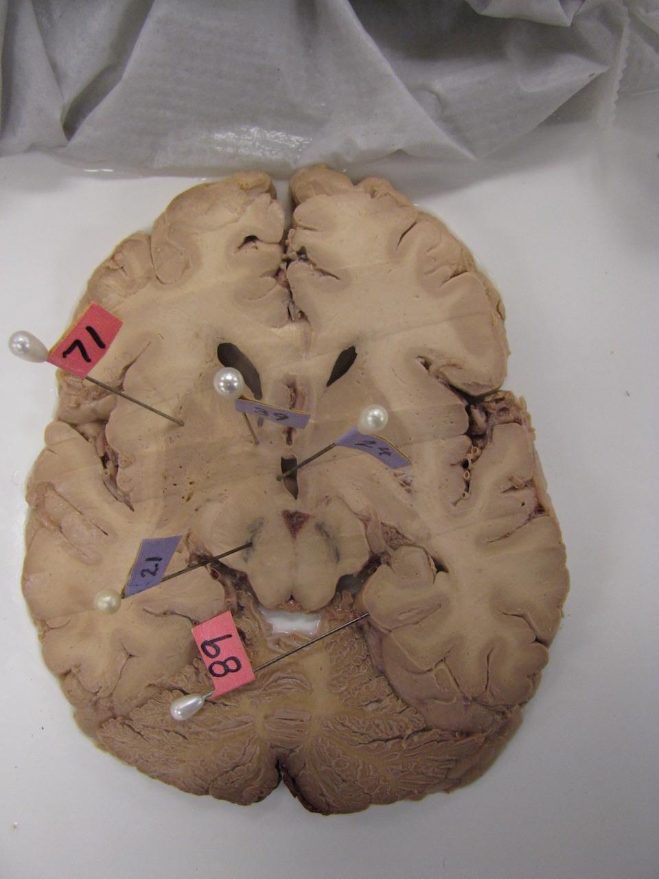 Cerebro con síntomas de Parkinson- SINC, M T Youngerer