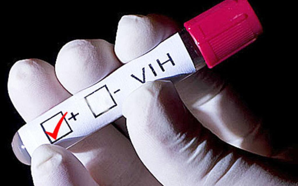 VIH análisis de sangre