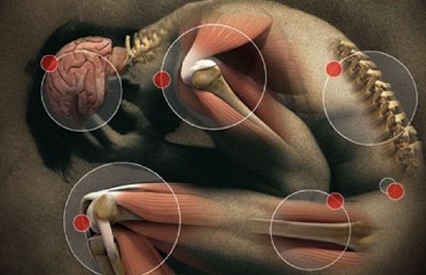 Dolor crónico, Fibromialgia
