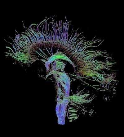 1 / 1 Los científicos han fijado su atención en el estudio de las conexiones neuronales que se establecen en el cerebro cuando hay trastornos neuropsiquiátricos.