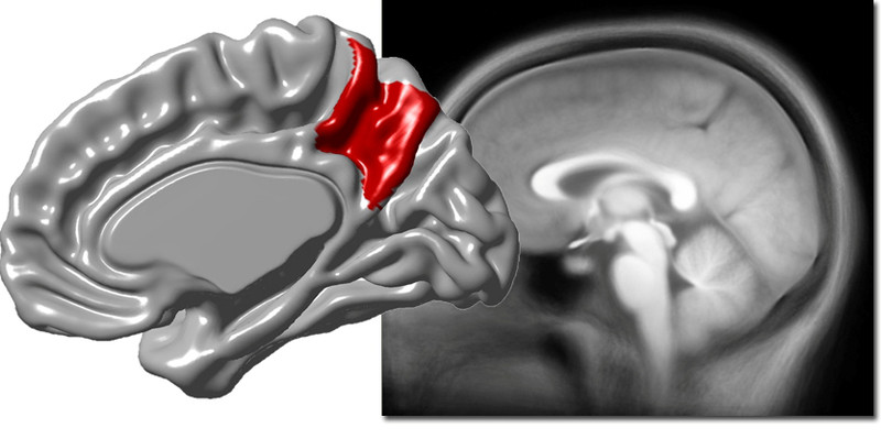 La variabilidad del precúneo del cerebro está asociada a la corteza cerebral