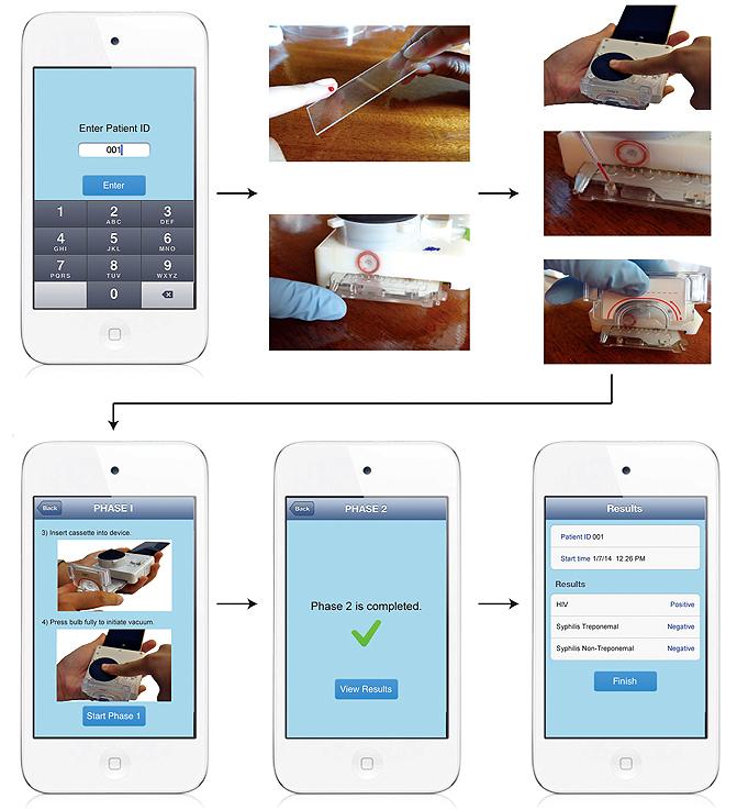 Pasos del test de VIH y sífilis con el accesorio para smartphones. / Tassaneewan Laksanasopin