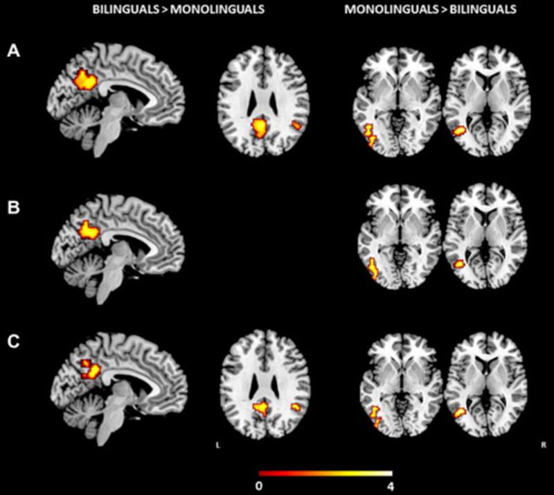 Los bilingües presentan diferencias en el cerebro al hablar su lengua materna