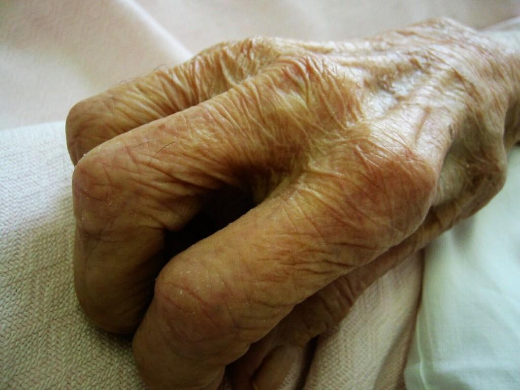 Mano de anciano- Sarchi