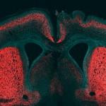 Un gen único ayuda a entender la evolución del cerebro humano