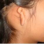 Reconstruyen pabellones auriculares con cartílago de costilla