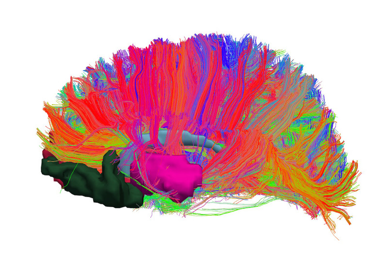 Identifican alteraciones en el sistema de recompensa cerebral de las personas con obesidad