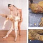 Tratamientos 'anti-edad' para obras de arte contemporáneo