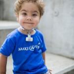 Férulas de impresión 3D ayudan a respirar a tres bebés en EE UU