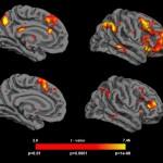 Los consumidores de cannabis muestran mayor susceptibilidad a tener falsos recuerdos