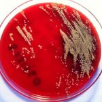Por primera vez se presentan casos de infección por 'Janibacter terrae' en humanos