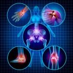 El dolor neuropático por diabetes no tiene por qué incapacitar al paciente