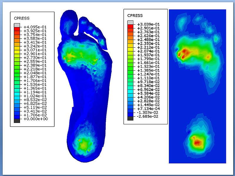 Crean unas plantillas que reducen la presión en los pies de pacientes diabéticos