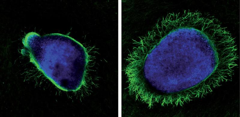 Una proteína generada por el virus del herpes potencia el crecimiento axonal