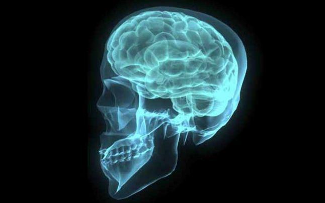 Análisis en línea gratuito de resonancia magnética del cerebro