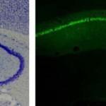 Las convulsiones en enfermedades neurodegenerativas, asociadas a una proteína