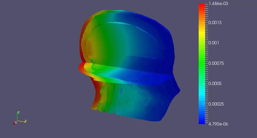 Un nuevo método ayuda a personalizar los tratamientos de radioterapia