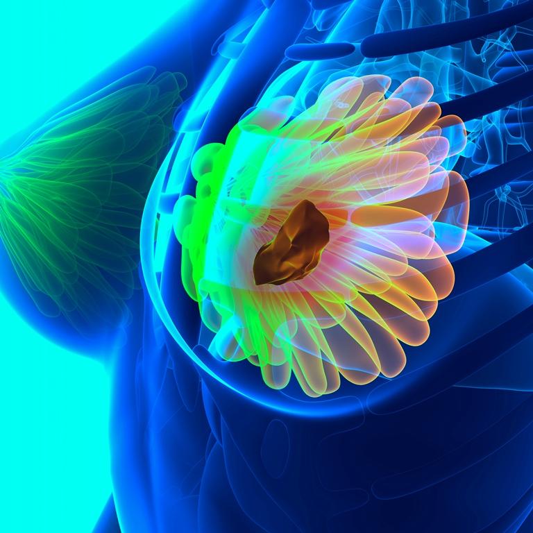 """En tejidos implantados en ratones identifican fármacos que """"retraen"""" tumores de páncreas y mama"""