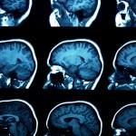 Las metástasis cerebrales podrían necesitar un tratamiento distinto al del tumor primario