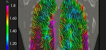 Crean tecnología 3D para adelantar el diagnóstico de enfermedades pulmonares