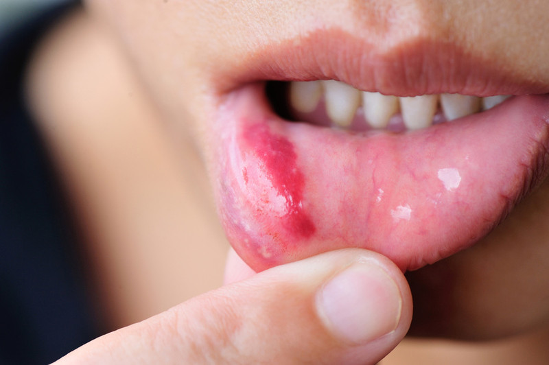 Labio con herpes simple- Fotolia