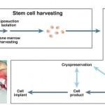 Células madre para tratar las fístulas de la enfermedad de Crohn