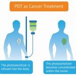 Inmunoterapia y terapia fotodinámica contra el cáncer