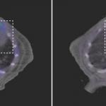 Un defecto en las mitocondrias del corazón causa muerte prematura