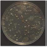 Los microorganismos si pueden adaptarse en condiciones extremas
