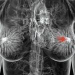 ¿Por qué el cáncer de mama afecta más a las mujeres obesas?