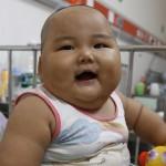 Obesidad infantil, una epidemia que recorre el mundo: 41 millones de niños menores de 5 años