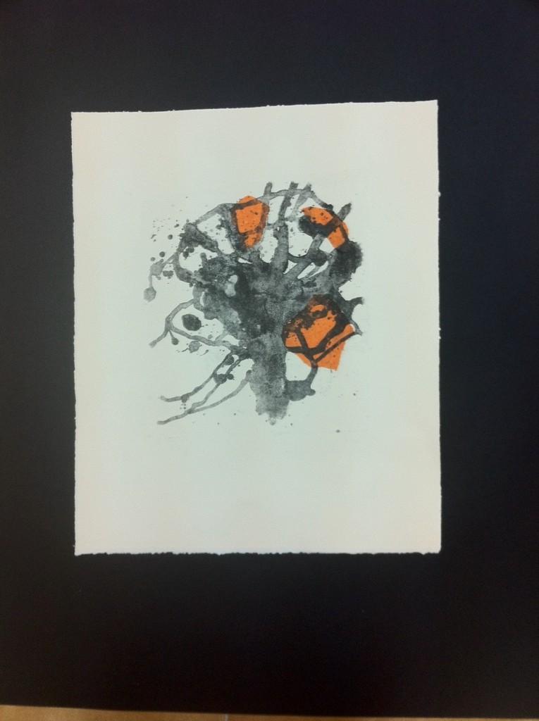 Alzheimer litografía
