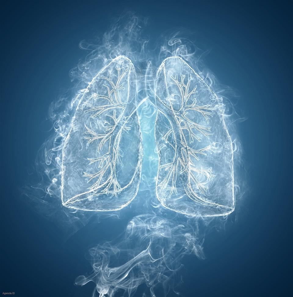 Fibrosis pulmonar idiopática, efectos del humo del cigarro