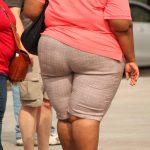 Una investigación pionera 'redefine' el concepto científico de obesidad