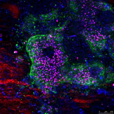 Diferenciación cardíaca de células madre pluripotentes humanas derivadas a cardiomiocitos en la matriz extracelular de un ventrículo descelurarizado. / IBEC