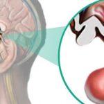 Un nuevo síndrome causa discapacidad intelectual y propensión a la obesidad