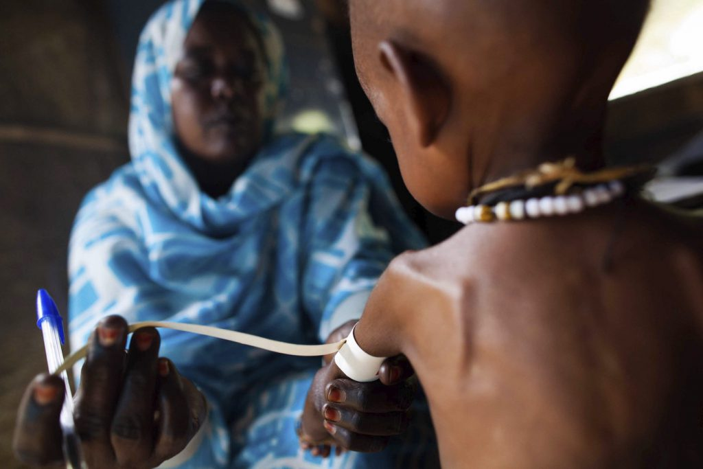 Los trastornos asociados a la malnutrición se transmiten de padres a hijos- Albert González (Unamid)