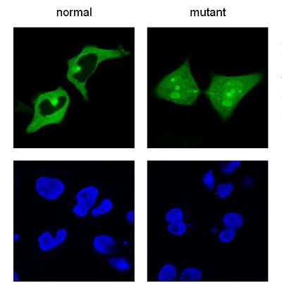 Una mutación en el aminoácido 144 de los quinientos que tiene la proteína UPSP21 hace que esta se acumule en el núcleo de una célula, en lugar de estar fuera. La imagen, obtenida mediante microscopía fluorescente, muestra las proteínas en verde y el núcleo de las células en azul. / UPV/EHU