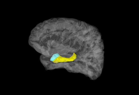 Imagen cerebral en la que aparecen coloreadas la amígdala (azul) y el hipocampo (amarillo). / Stephan Moratti