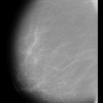 Un programa diagnostica en las mamografías el 99% de los tumores