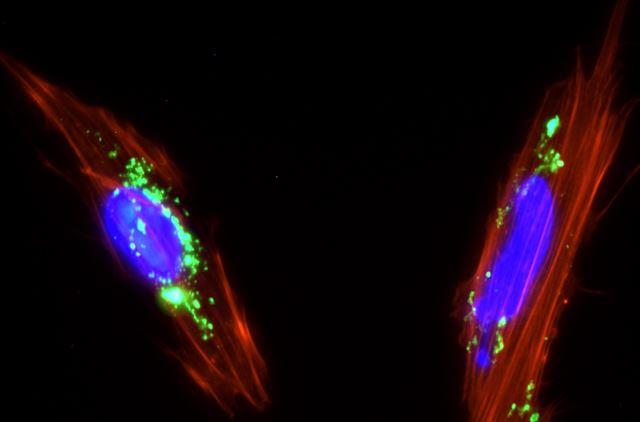 Células mesenquimales de placenta con nanopartículas de sílice mesoporosa (color verde) internalizadas en su citoplasma. / Juan Luis Paris