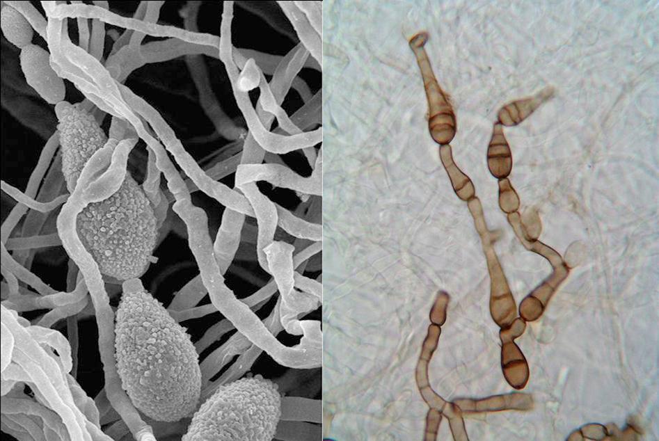 Hongo alternaria alternata visto en un microscopio electrónico (izquierda) y hongo alternaria infectoria visto por un microscopio óptico (derecha). / URV