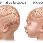 Sin precisar aún la relación entre el Zika y la microcefalia
