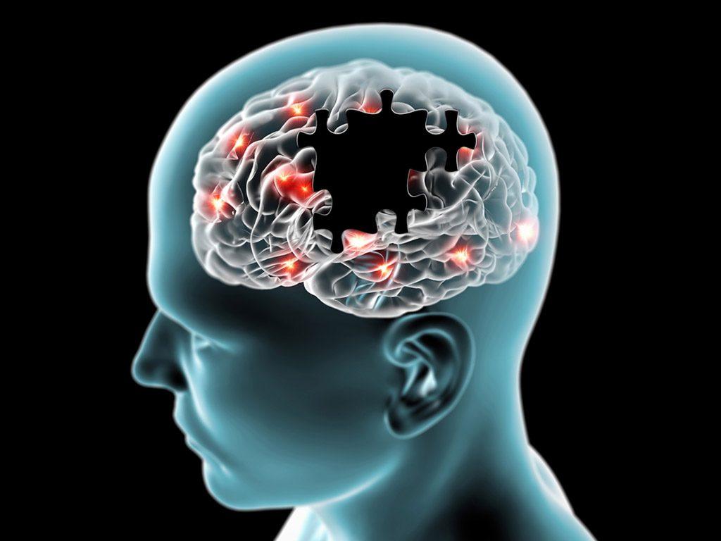 Neuronas trabajando