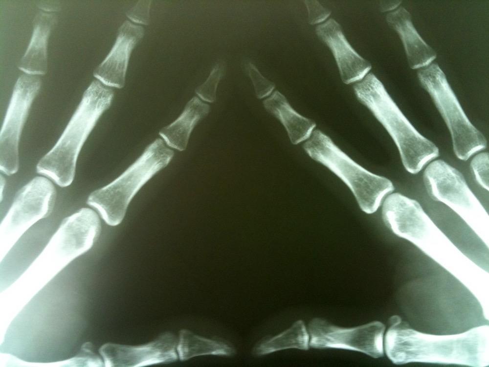 Manos vistas a través de rayos X- Michael Dorausch
