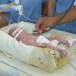 Nuevo tratamiento para cardiopatías congénitas en bebés