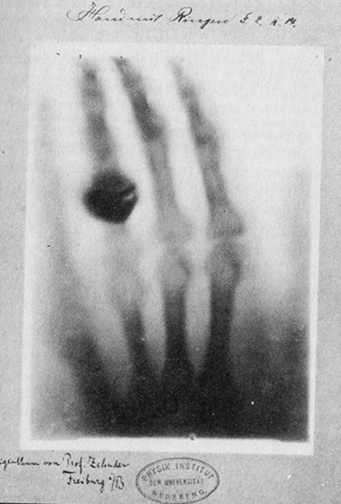 Rayos X de la mano de la esposa de Röntgen, la primera radiografia del mundo