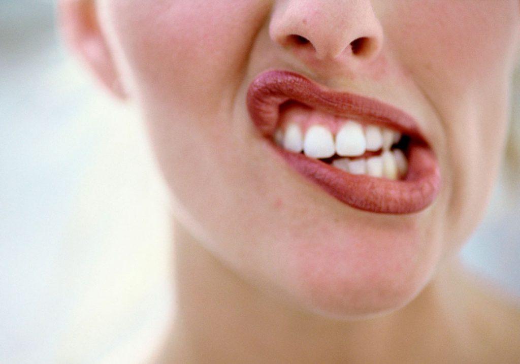 Bruxismo o rechinido de dientes