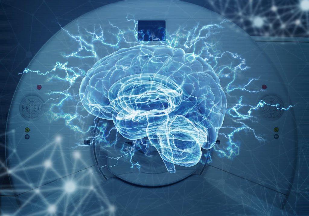 Cerebro holográfico