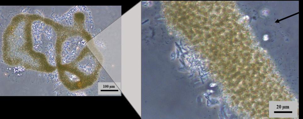 Cianobacteria Microcystis aeruginosa- María Angeles Lezcano Vega